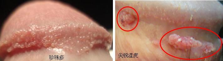 冠状沟珍珠疹图片_冠状沟有异味和珍珠疹怎么办???????-珍珠疹有异味吗